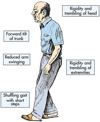 parkinsons-symptoms